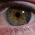 Central heterochromia.jpg