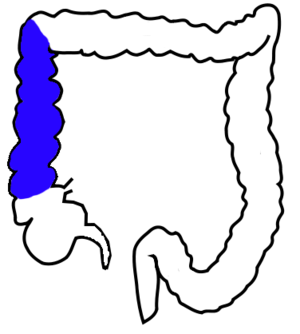 Ascending colon - Drawing of colon seen from front  (ascending colon coloured blue)