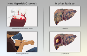 Methods by which Hepatitis C spreads