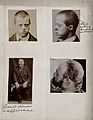 Down's syndrome; seen in two views of a man's head. Two phot Wellcome V0030026.jpg