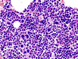 Essential thrombocythemia (1)