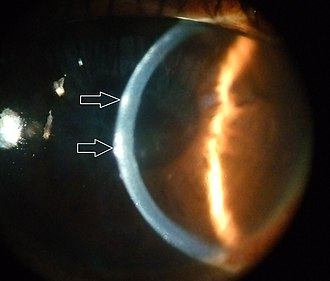 Slit lamp - Lesions are seen in superficial layers of cornea by direct focal illumination