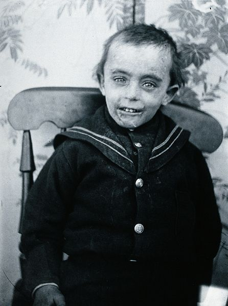 File:Gloucester smallpox epidemic, 1896; a boy named Matthews Wellcome V0031455.jpg