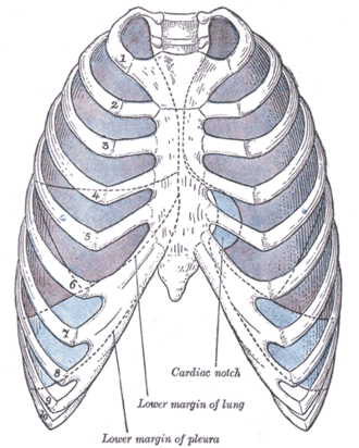 Costomediastinal recess - Front view of thorax, showing the relations of the pleuræ and lungs to the chest wall. Pleura in blue; lungs in purple.