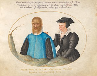 Hypertrichosis Hair disease characterized by hair growth that is abnormal in quantity or location