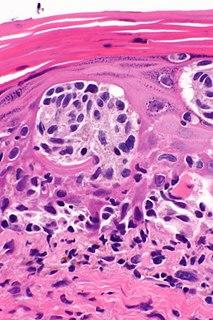 tumore maligno che origina dal melanocita, una cellula preposta alla sintesi della melanina