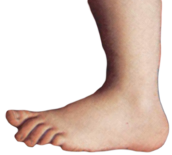 Monty python foot.png