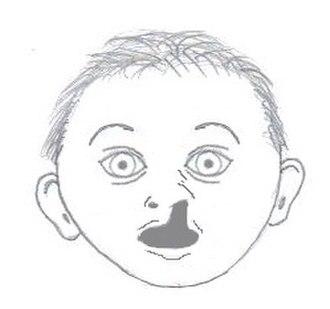 Facial cleft - Image: Nasalmaxillary dysplasia