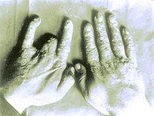 Radiační nekróza prstů ruky – v minulosti byla typická u radiologů
