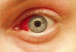 förkylning röda ögon