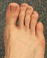 In tetrapods, the hallux is the innermost toe of the foot.