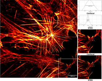 STED microscopy - Stimulated emission depletion (STED) microscopy provides significant resolution improvements over those possible with Confocal microscopy.