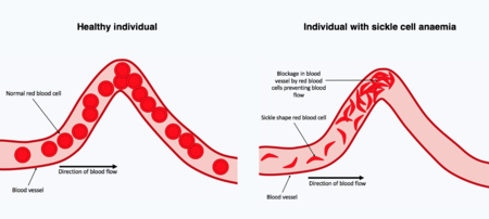 two blood curved vessels are shown, on the left one blood vessel contain normal red blood cells throughout the vessel. On the right, the red blood cells have a dish shape due to being sickled, a blockage composed of these distorted red blood cells is present at the curve in the blood vessel.