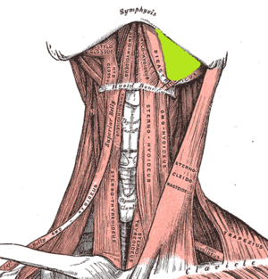 Submandibular space - Left submandibular space (right side shown with digastric muscle removed).