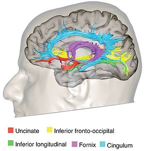 Cingulum (brain) - Diffusion tensor tractography of cingulum (blue).