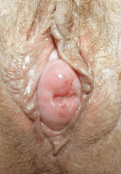 Uterine prolapse.jpg