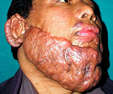 Radiation-induced keloid