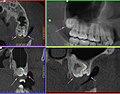 ДКТ, Многоплоскостная реконструкция области ретенированного 2.8 зуба и СКЗ 2.9.jpg