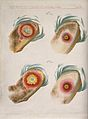 A comparison between smallpox and cowpox pustules on the 10t Wellcome V0016673.jpg