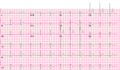 Brugada syndrome type2 example1 (CardioNetworks ECGpedia).png