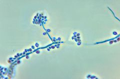 Conidiophores and conidia of the fungus Sporothrix schenckii PHIL 4208 lores.jpg