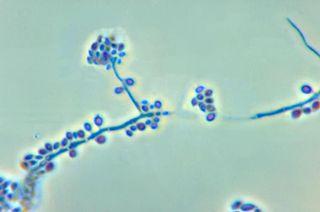 <i>Sporothrix schenckii</i> species of fungus