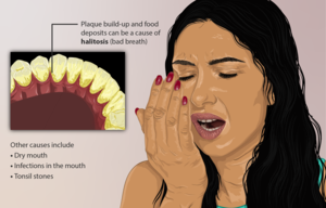 Depiction of a person who has Halitosis (or bad breath).png