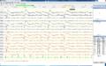 EEG Closing eyes.png