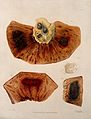 Four sections of diseased intestines. Coloured mezzotint by Wellcome V0009760.jpg