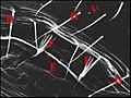 Fusules épigastriques d'Anelosimus.jpg