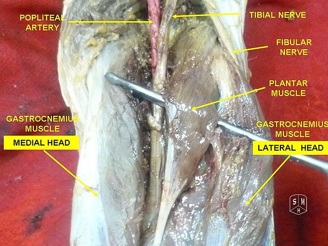Gastrocnemius Muscle 3g