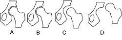 Hip dysplasia - schematic.jpg