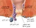 Internal and external hemorrhoids-ar.png