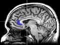 MRI subgenual anterior cingulate.png