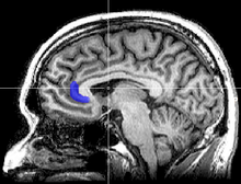 Sagittal MRI slice with highlighting indicating location of the subgenual anterior cingulate cortex.
