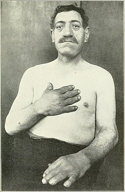 Male acromegaly patient (1904)