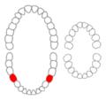 Mandibular second premolars01-01-06.png