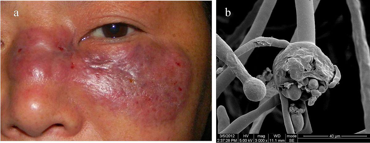 Black fungus (COVID-19 condition) - Wikipedia