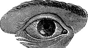 A black-and-white illustration of a mammalian right eye, with a lesion on the cornea overlying the lower-left portion of the iris, surrounded by enlarged blood vessels.