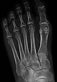 Sesamoid bone - Wikipedia