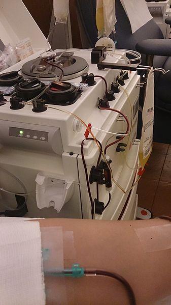 File:Plateletpheresis.jpg