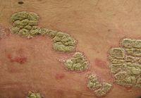 Leczéma sur les tétines de la poitrine le traitement