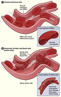 Sickle cell disease Type of hereditary blood disorder