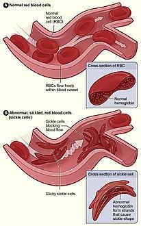 d4cb074d3be44 الشكل (أ) يعرض خلايا الدم الحمراء الطبيعية التي تتدفق بحرية من خلال الأوردة.