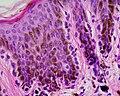 Skin Tumors-183.jpg