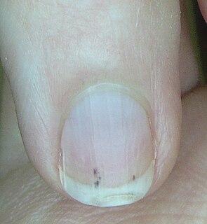 Splinter hemorrhage