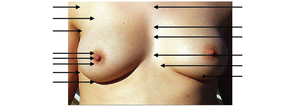Intermammary cleft - Superficial anatomy of human female breast