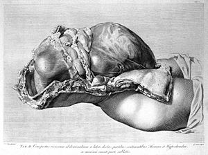 The anatomy of the human gravid uterus exhibited in figures. Wellcome L0003636.jpg