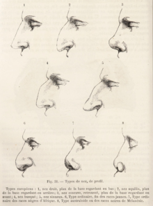Image showing drawings of various nasal shapes.