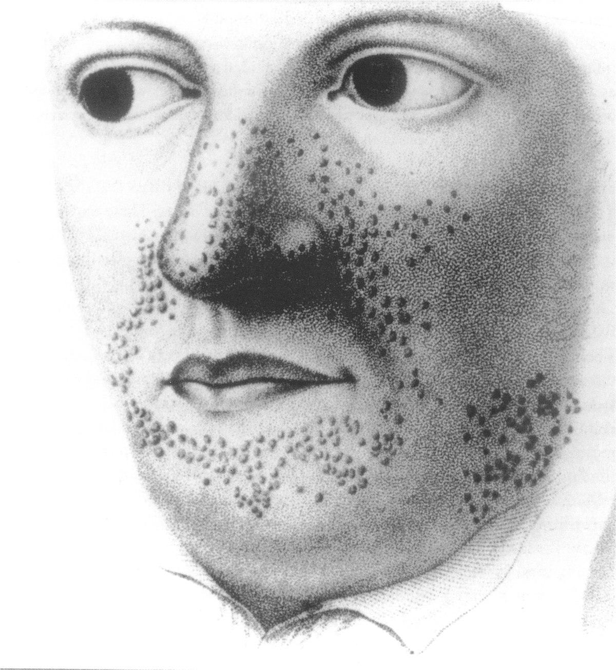 Esclerose tuberosa Wikipédia a enciclopédia livre